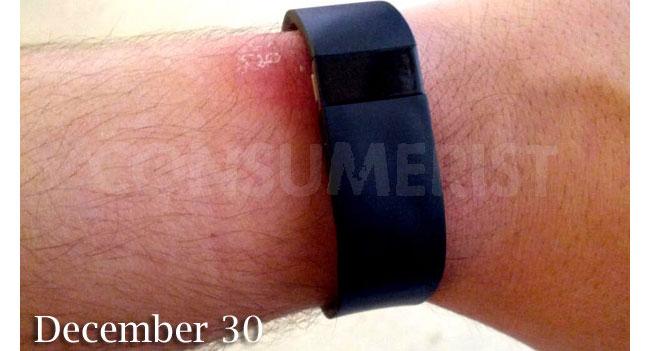 Длительное ношение Fitbit Force вызывает аллергическую реакцию на коже некоторых пользователей