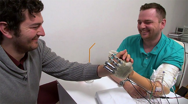 Researchers have created a bionic prosthetic arm that can transmit tactile sensations