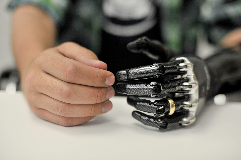 Первый в мире человек с механической рукой: chyyr 17