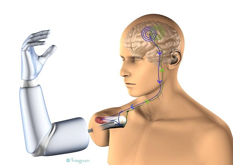 В Мексике создан функциональный протез, соединяющийся с нервами и мышцами