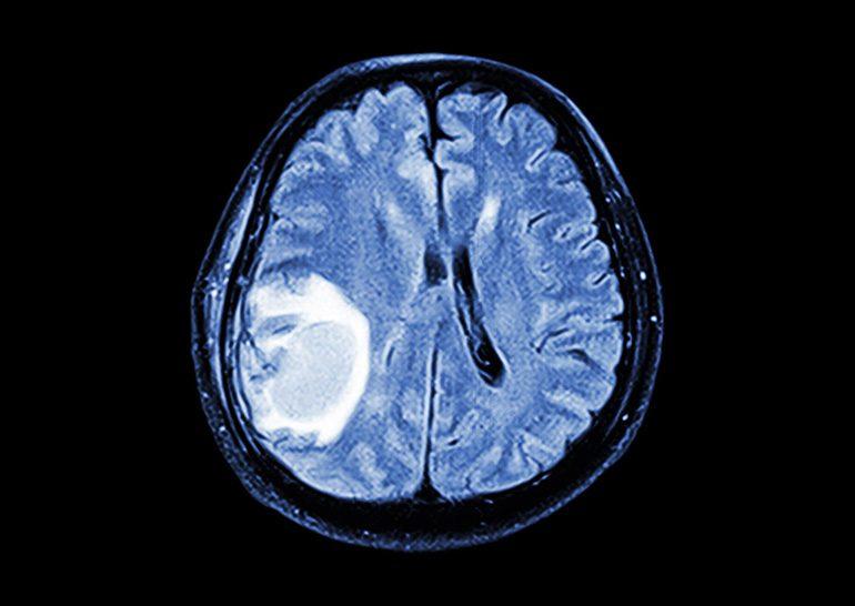 Как обнаружить опухоль мозга
