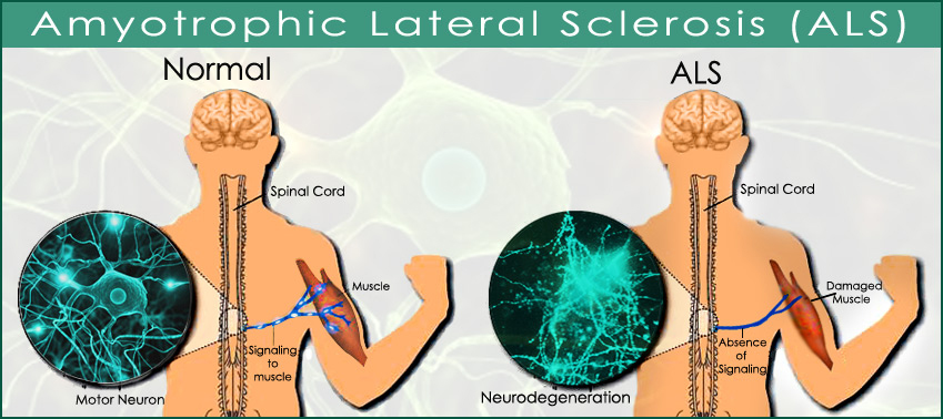 amyotrophic lateral sclerosis Als: amyotrophic lateral sclerosis signs and symptoms als affects the u pper motor neurons , which are in the brain, and the lower motor neurons , which are in the spinal cord and brainstem.