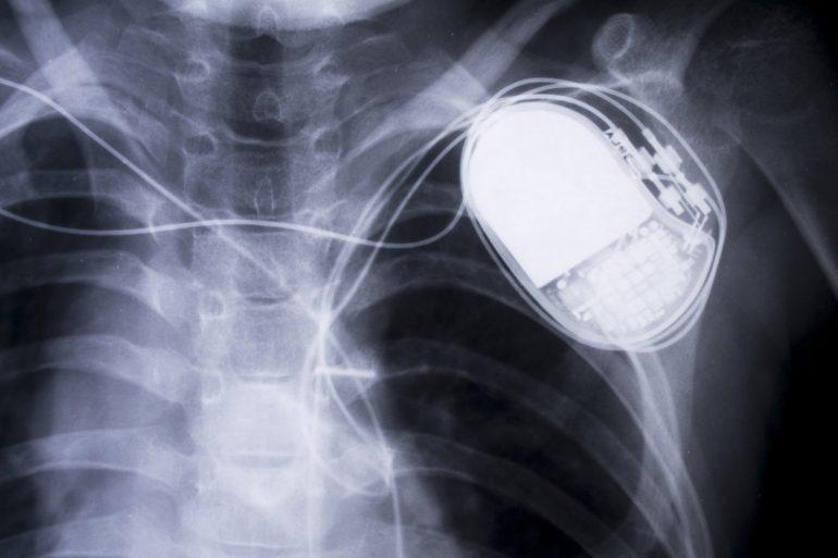 FDA впервые признало, что некоторые кардиостимуляторы уязвимы для взлома