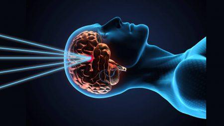 Группа лондонских нейрохирургов записала панорамное видео настоящей операции на открытом мозге (18+)