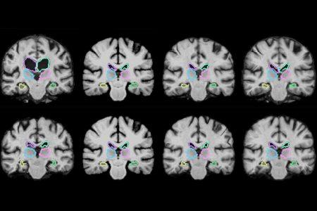 Разработана ИИ-система анализа результатов 3D-сканирования пациентов, которая может помочь врачам во время операций
