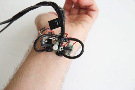 Исследователи MIT представили Skinbot — шагающего робота-диагноста на присосках