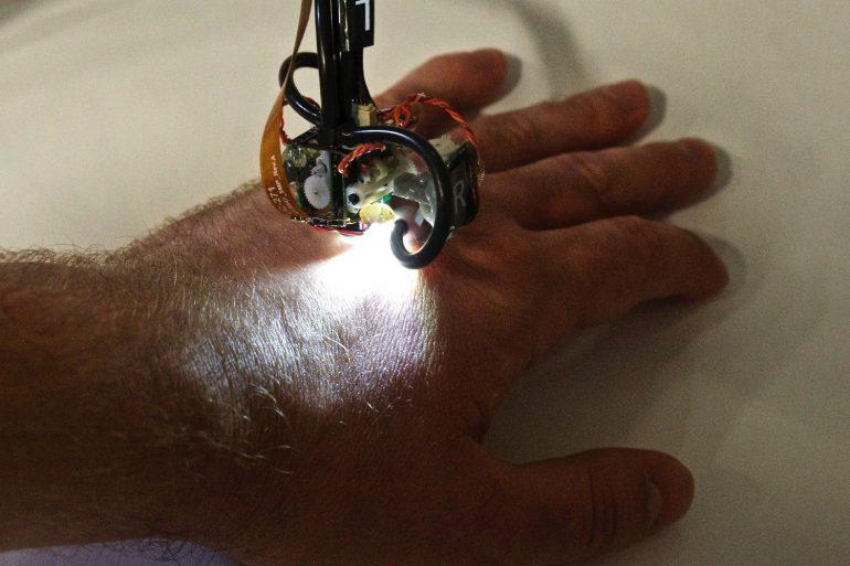 Исследователи MIT представили Skinbot - шагающего робота-диагноста на присосках