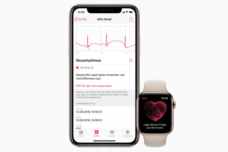 Cardiogram функцията в Apple Watch 4 часовници, спечелени в Европа