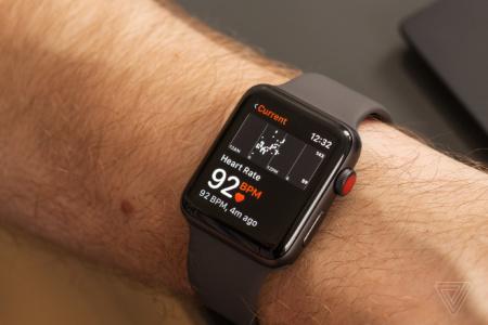 Мониторинг сердечного ритма в Apple Watch вынуждает людей слишком часто обращаться к врачам